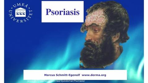 Miniatyr för inlägg T8 Hud - Psoriasis HT 2016.mp4