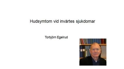 Miniatyr för inlägg T8 Hud - Inv sjd o Hud TE 2012.mp4