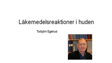 Miniatyr för inlägg T8 Hud - Läkemedel Hud-reaktion TE 2012.mp4