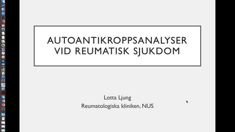 Miniatyr för inlägg Autoantikroppsanalyser vid reumatisk sjukdom