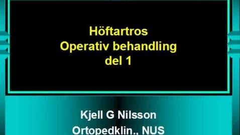 Miniatyr för inlägg T8 Ortopedi - Höft artros Operativ behandling Del 1 KGN VT11.mp4