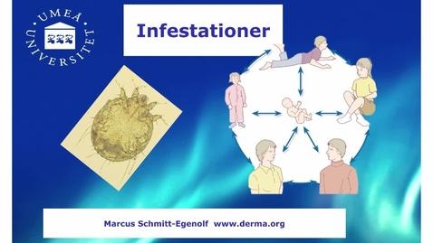 Miniatyr för inlägg T8 Hud - Infestationer HT 2016.mp4