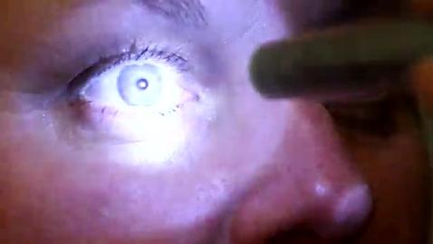 Thumbnail for entry Pupillrespons pupillreaktioner